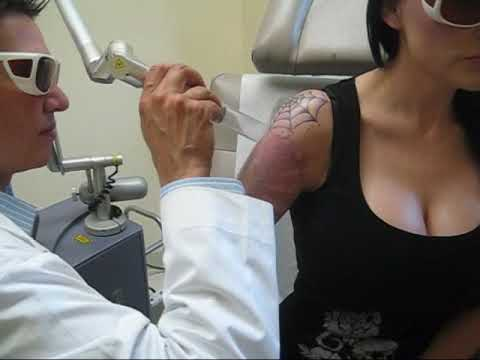 This is the work in progress of Dahlia Dark's laser tattoo removal treatment