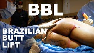 Brazilian Butt Lift (BBL) - Dr. Paul Ruff | West End Plastic Surgery