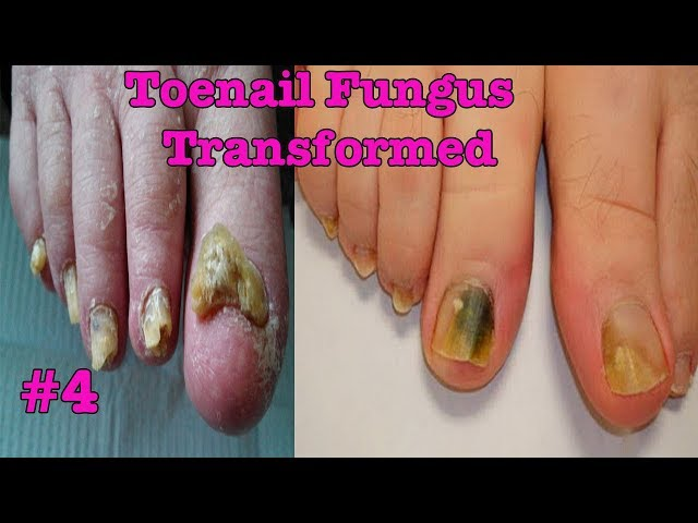 Toenail Fungus Transformed into Pretty nail #4 | Toenail pedicure tutorial - November 2017