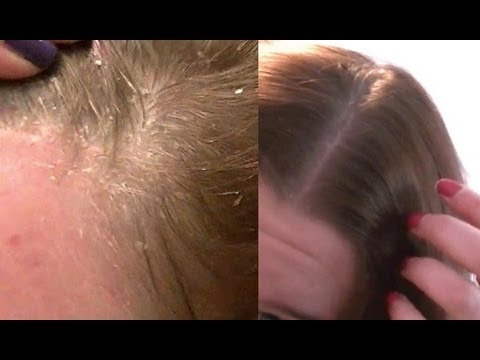 Get Rid Of Dandruff - Home Remedy - Apple Cider Vinegar