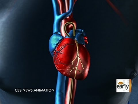 Heart health: Patient's own stem cells repaired damage