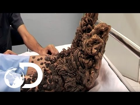 My Shocking Story: Treeman the Cure - Hospital Life