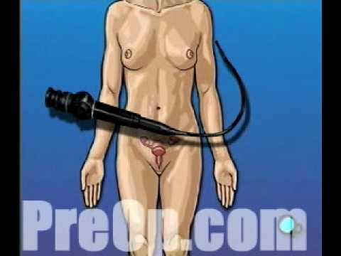 Preop® Patient Education Cystoscopy Via Vagina, Female Surgery video