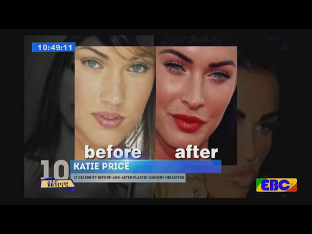 Plastic Surgery Facts