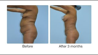 3D Liposuction, Brazilian Butt Lift, Breast Augmentation, Tummy Tuck Atlanta, GA