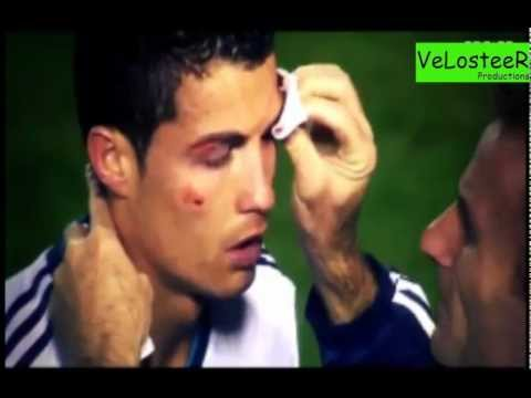 Cristiano Ronaldo sofre corte gravíssimo! | Hard Injury | ᴴᴰ
