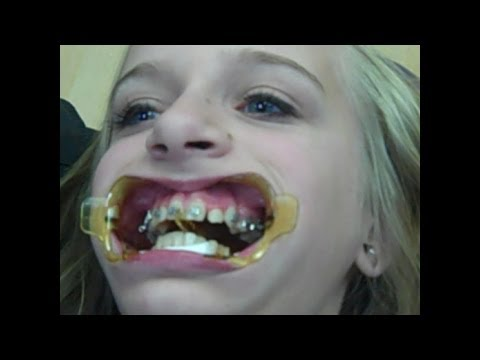All About Braces! (Watch Me Get My Braces On, How To Clean Braces, & FAQ About Braces)
