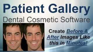 Patient Gallery Dental Cosmetic Software Full Demonstration
