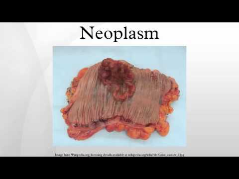 What Is a Malignant Neoplasm