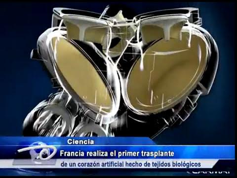Francia realiza el primer trasplante de un corazón artificial