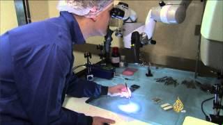 أطباء في هولندا يتوصلون لعلاج جديد لالتهاب المفاصل