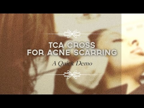 TCA CROSS for acne scarring