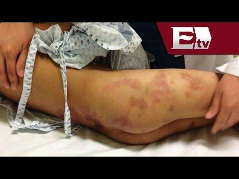 Ex policía municipal de Edomex, presunto agresor de Owen, menor brutalmente golpeado
