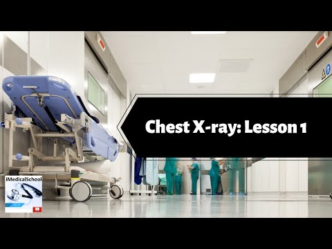 Medical School - How to Read a Chest X-ray Lesson 1