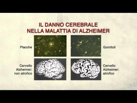 Cosa causa la malattia di Alzheimer?  – release 2