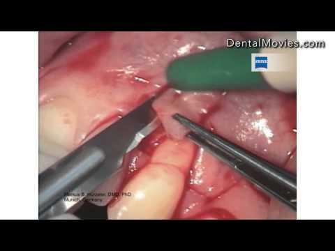 Periodontal surgery and the dental microscope. Carl Zeiss.