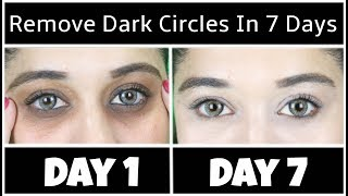 How to Remove Dark Circles Naturally in 7 Days (100% Results)