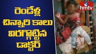 ఫిజియోథెరపీ చేస్తుండగా రెండేళ్ల చిన్నారి కాలు విరగ్గొట్టిన డాక్టర్ - Hyderabad  Latest Updates  hmtv