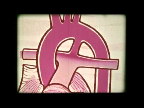 16mm Film | Congenital Heart Defect