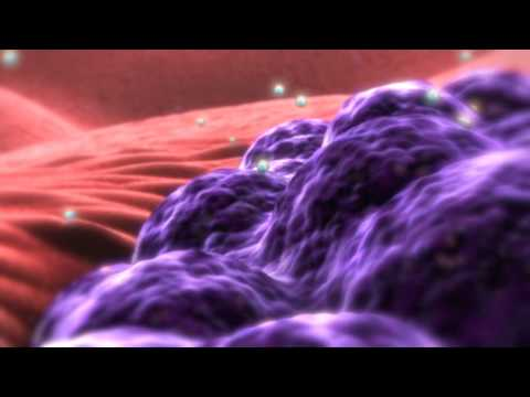 Nanobiotix: nanomedicine for cancer treatment