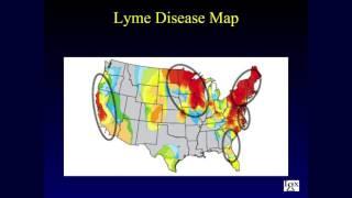 Robert Giguere - Igenex, Inc. - 2017 Lyme Conference