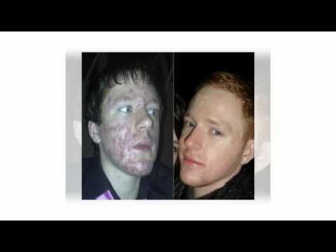 Accutane Before And After Cystic Acne - Look At This!