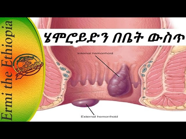 Ethiopia: Hemorrhoids Treatment At Home