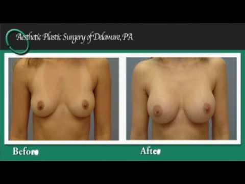 breast implant surgeon delaware