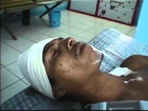 Hombre escapa de morir macheteado en Chinandega