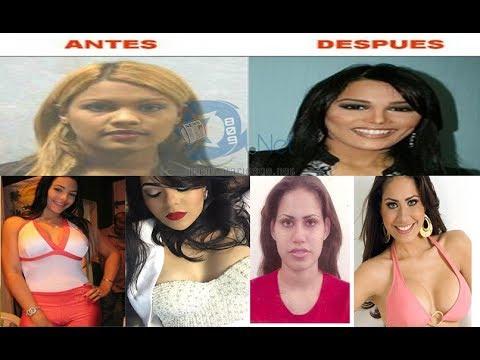 Antes y despues de Presentadoras y famosas de Republica Dominicana