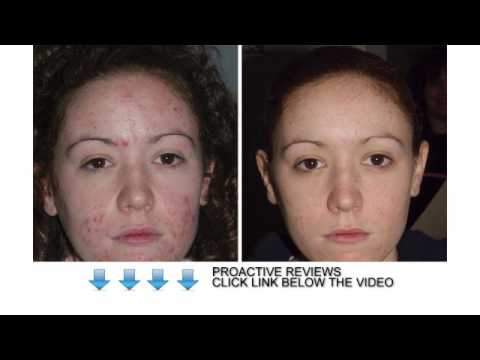 Proactive reviews - will proactive help you to cure acne?