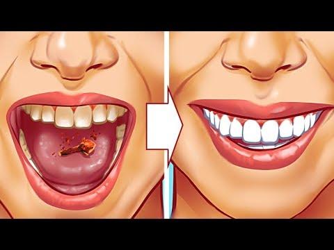 10 طرق طبيعية لإزالة جير الأسنان في المنزل بمكونات بسيطه لن تصدقي