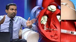 Meet Your Doctor - Dr. Thiwanka Samarakoon (2021-01-23)