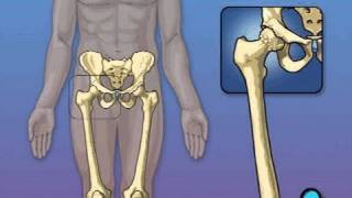Hip Replacement Surgery PreOp® Patient Education