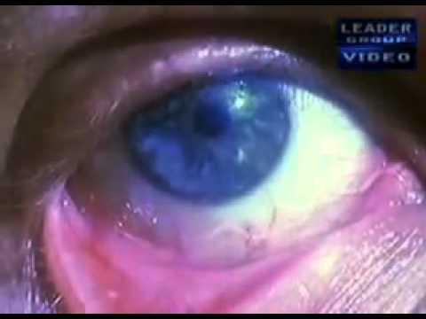 паразиты в теле человека глисты
