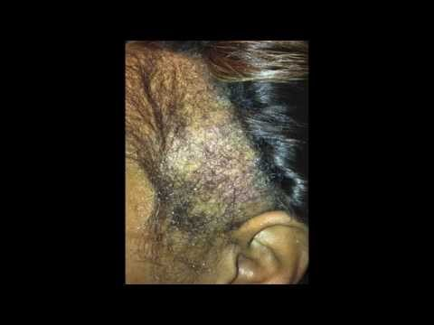Regrow Your Edges Naturally In As Little As 10 Weeks!!