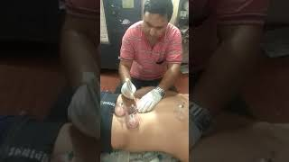 Backache manage by raktmochhana (blood cupping)