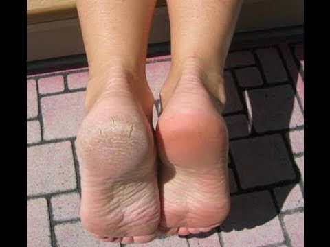 What Are the Causes of Burning Feet ? eHow