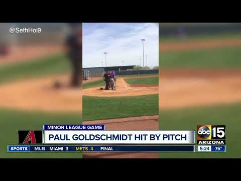 Paul Goldschmidt Hit In Head By Pitch - ABC15 Sports