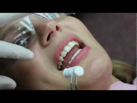 Invisalign Video Blog, Bonding Attachments [HD] - Sierra 05