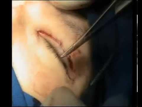 Blepharoplasty epicanthoplasty (Y-V method) and ptosis correction...