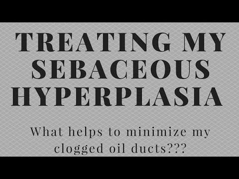 How I treat my Sebaceous Hyperplasia: Ways to minimize my clogged oil ducts!