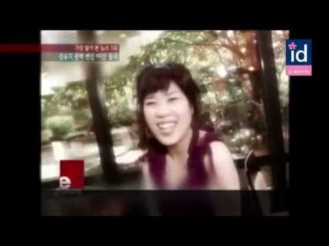 日本語字幕。韓国芸能人整形!お笑い芸人のカン・ユミの両顎手術ビフォーアフター