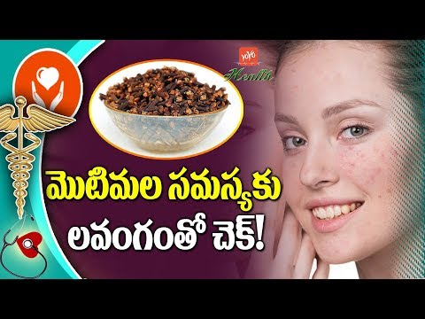 How to Remove Pimples Fast | Cloves Benefits in Telugu | YOYO TV Health