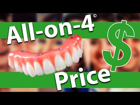 All on 4 Dental Implants Cost