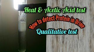 Heat and acetic acid test || how to detect protein in urine for MLT & Pathology students in english