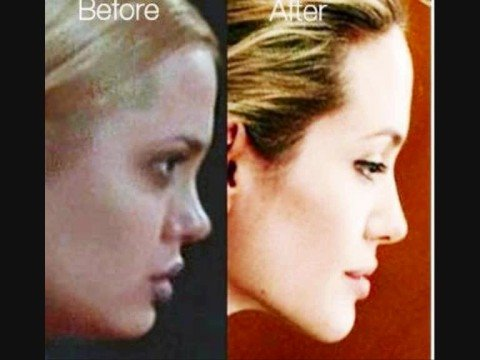 ANGELINA JOLIE BEFORE & AFTER