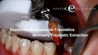 Exodontia Minimamente Traumática - Minimally Traumatic Extraction