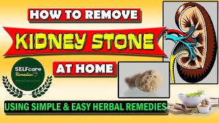 How To Remove 'KIDNEY STONE' at Home, Using Simple & Easy Herbal Remedies@selfcare remedies.