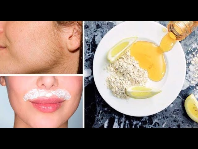 Cómo Eliminar Vello Facial y Corporal Definitivamente en Casa / Get Rid of Facial Hair Naturally